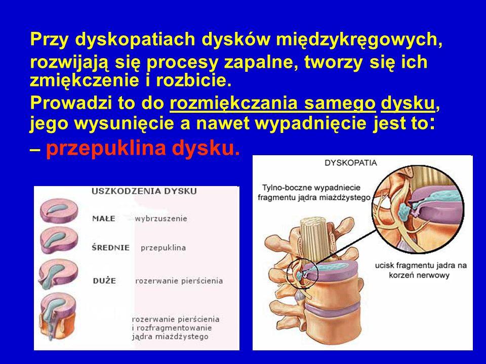 Przy dyskopatiach dysków międzykręgowych, rozwijają się procesy zapalne, tworzy się ich zmiękczenie i rozbicie. Prowadzi to do rozmiękczania samego dy