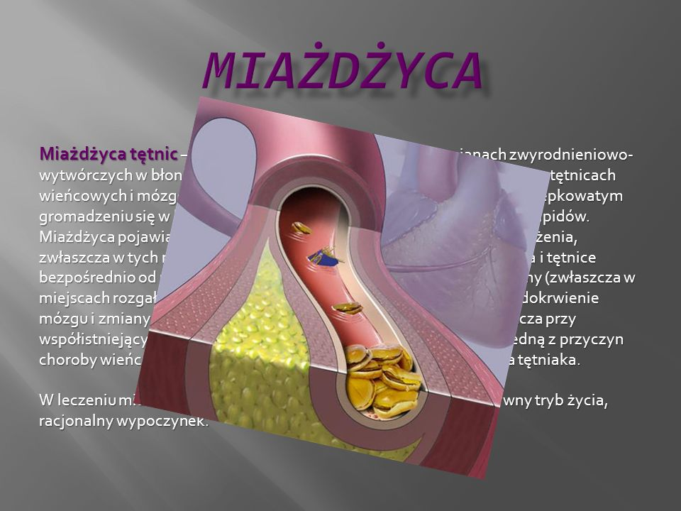 Miażdżyca tętnic – przewlekła choroba, polegająca na zmianach zwyrodnieniowo- wytwórczych w błonie wewnętrznej i środkowej tętnic, głównie w aorcie, t