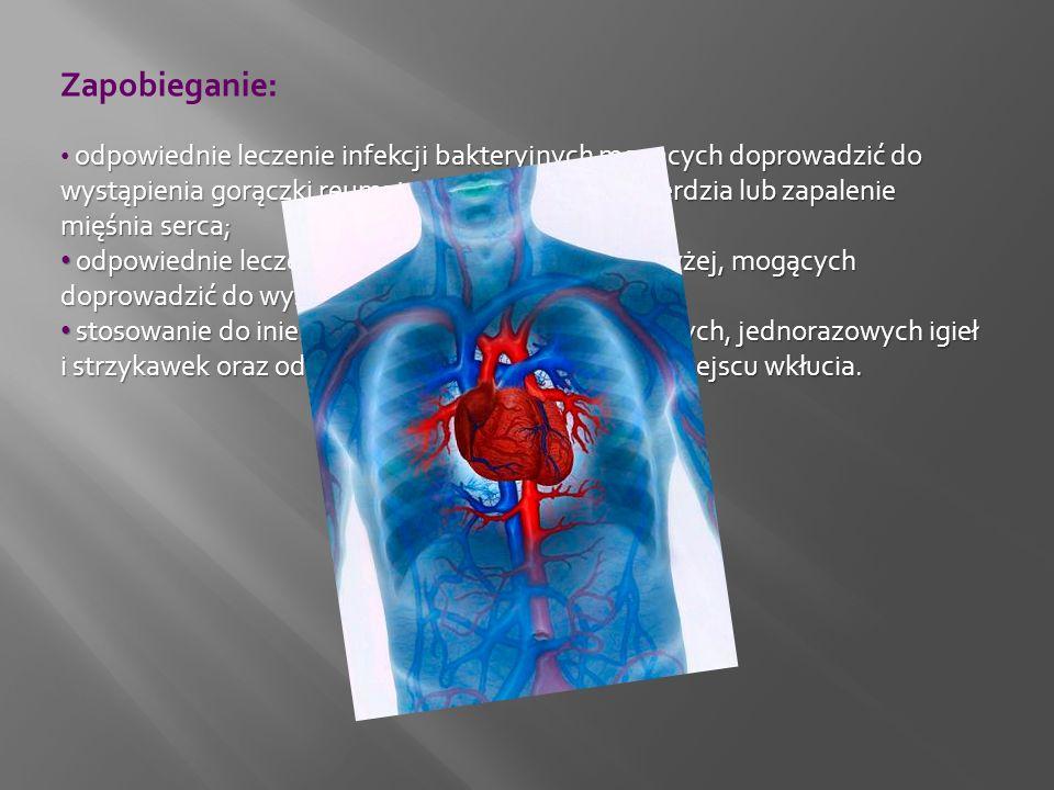 Zapobieganie: odpowiednie leczenie infekcji bakteryjnych mogących doprowadzić do wystąpienia gorączki reumatycznej, zapalenia wsierdzia lub zapalenie