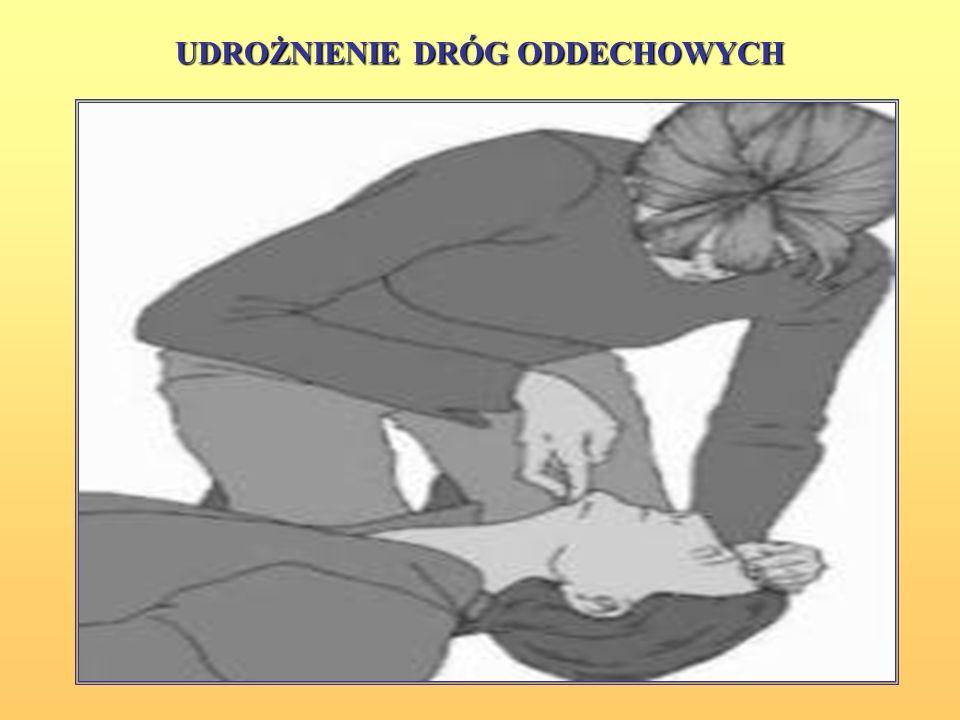 REANIMACJA KRĄŻENIOWO-ODDECHOWA Podczas reanimacji dorosłego chory leży na plecach, na twardym podłożu. udrożnienie dróg oddechowych poprzez odgięcie