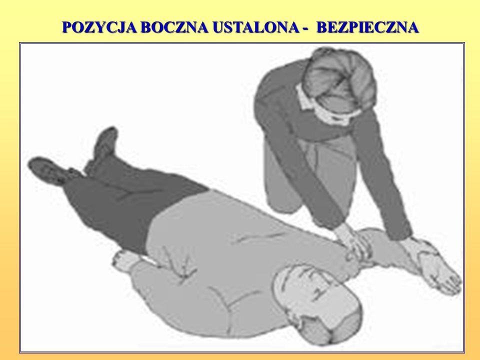 Istnieje kilka wariantów pozycji bezpiecznej - powinna ona być stabilna, jak najbliższa ułożeniu na boku, z odgięciem głowy i brakiem ucisku na klatkę