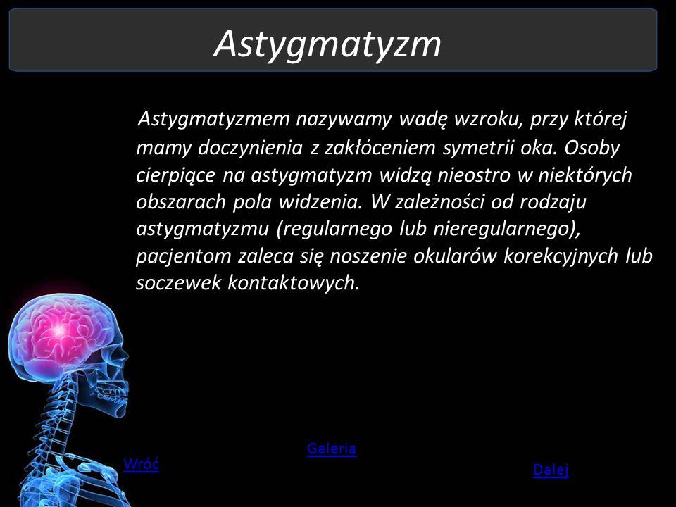Astygmatyzm Astygmatyzmem nazywamy wadę wzroku, przy której mamy doczynienia z zakłóceniem symetrii oka. Osoby cierpiące na astygmatyzm widzą nieostro
