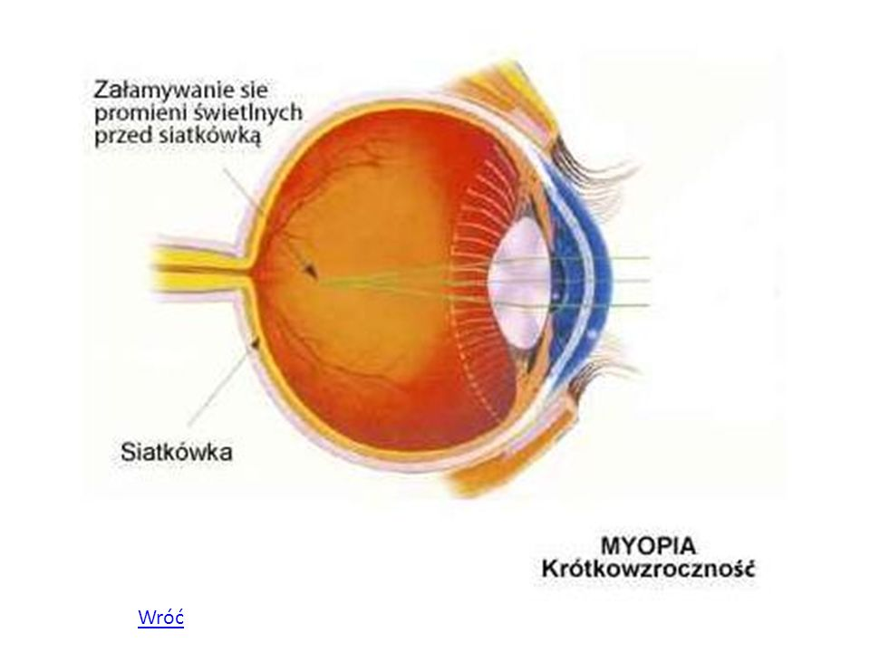 Dalekowzroczność W dalekowzroczności obraz skupiany jest przez oko za siatkówką.