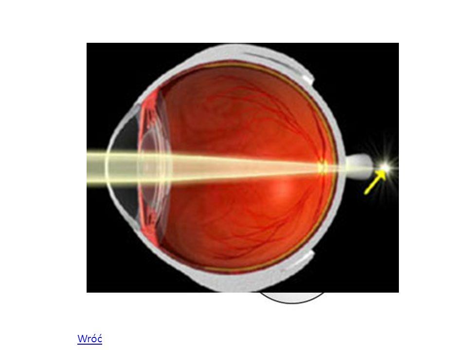 Astygmatyzm Astygmatyzmem nazywamy wadę wzroku, przy której mamy doczynienia z zakłóceniem symetrii oka.