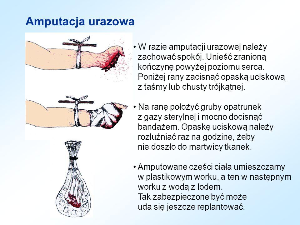 Amputacja urazowa W razie amputacji urazowej należy zachować spokój. Unieść zranioną kończynę powyżej poziomu serca. Poniżej rany zacisnąć opaską ucis