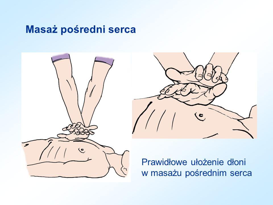 Masaż pośredni serca Miejsce ucisku klatki piersiowej w masażu pośrednim serca