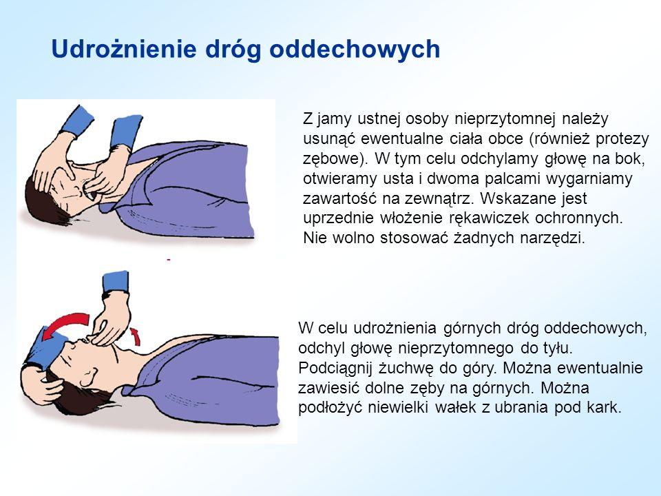 Udrożnienie dróg oddechowych Z jamy ustnej osoby nieprzytomnej należy usunąć ewentualne ciała obce (również protezy zębowe). W tym celu odchylamy głow