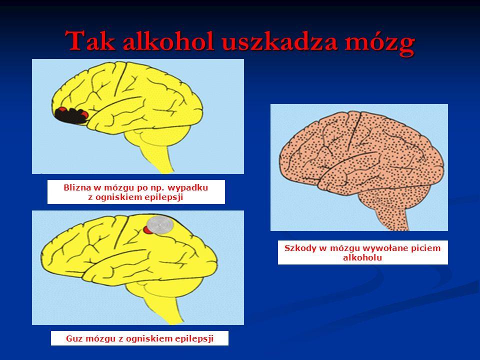 Tak alkohol działa na mózg i ośrodkowy układ nerwowy Alkohol sprawia, że czujemy się szczęśliwsi, łatwiej nawiązujemy kontakty z ludźmi, mamy mniejsze