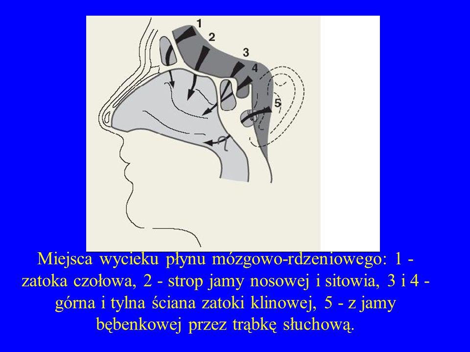 Miejsca wycieku płynu mózgowo-rdzeniowego: 1 - zatoka czołowa, 2 - strop jamy nosowej i sitowia, 3 i 4 - górna i tylna ściana zatoki klinowej, 5 - z j