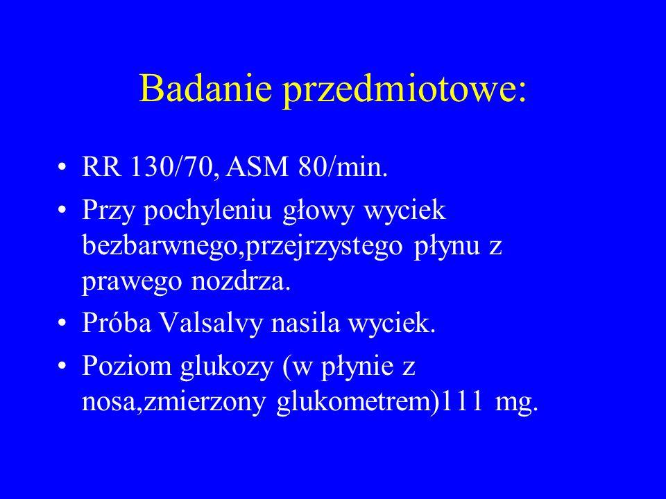 Badanie przedmiotowe: RR 130/70, ASM 80/min. Przy pochyleniu głowy wyciek bezbarwnego,przejrzystego płynu z prawego nozdrza. Próba Valsalvy nasila wyc
