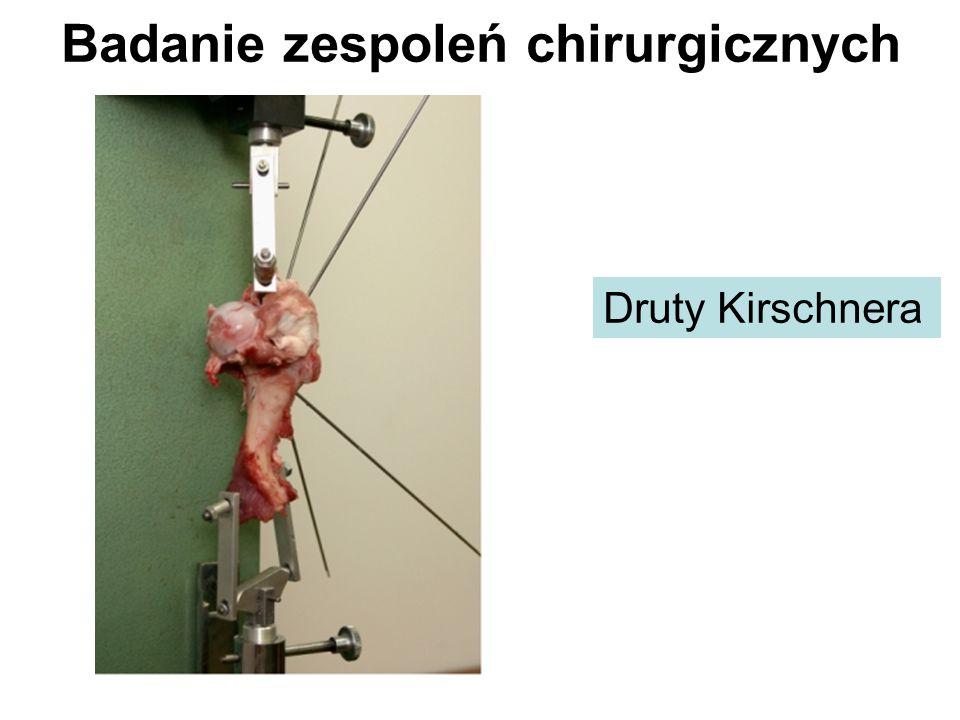 Badanie zespoleń chirurgicznych Druty Kirschnera