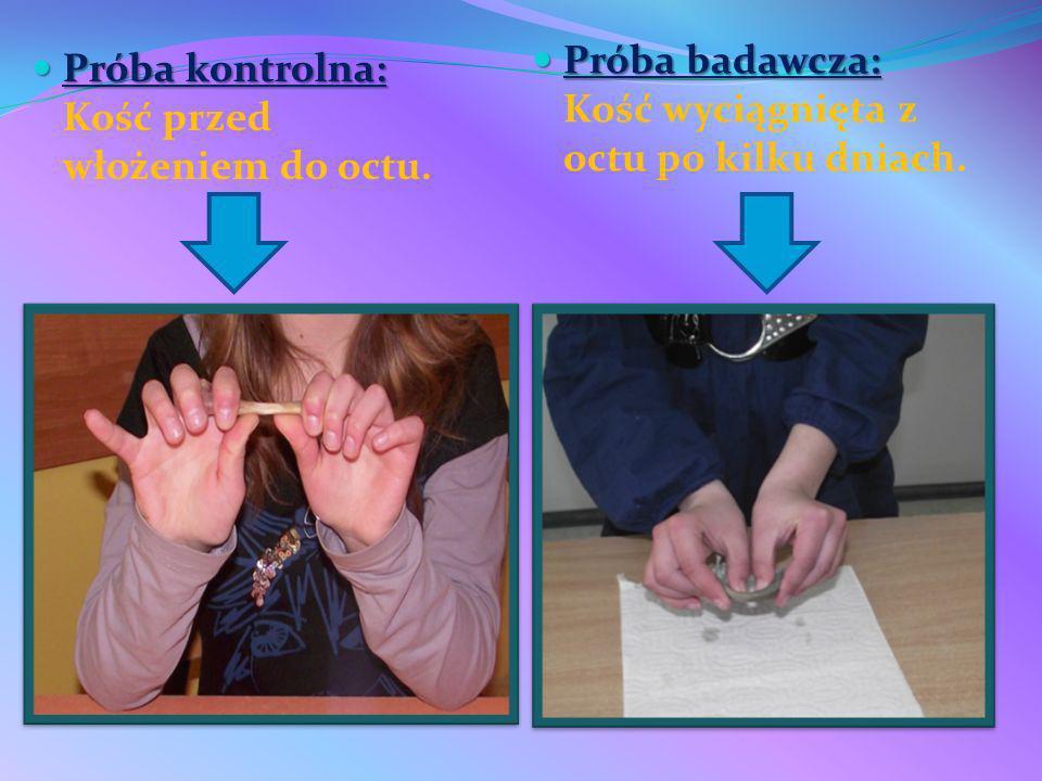 Próba kontrolna: Próba kontrolna: Kość przed włożeniem do octu. Próba badawcza: Próba badawcza: Kość wyciągnięta z octu po kilku dniach.