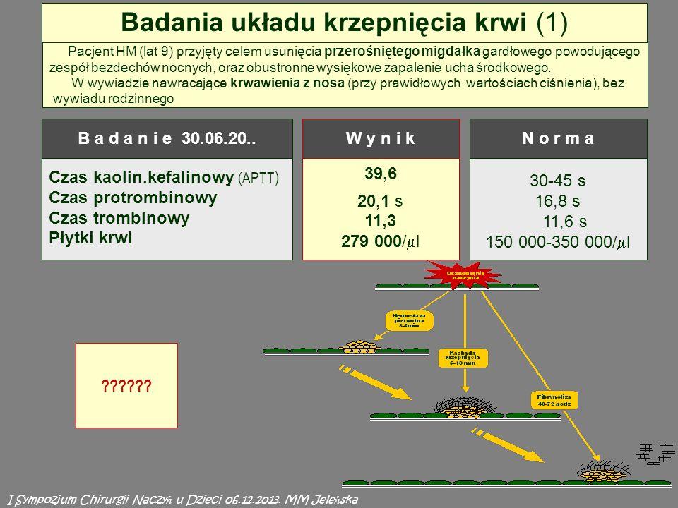 39,6 20,1 s 11,3 279 000/ l 30-45 s 16,8 s 11,6 s 150 000-350 000/ l Badania układu krzepnięcia krwi (1) Czas kaolin.kefalinowy (APTT ) Czas protrombinowy Czas trombinowy Płytki krwi B a d a n i e 30.06.20..W y n i kN o r m a Pacjent HM (lat 9) przyjęty celem usunięcia przerośniętego migdałka gardłowego powodującego zespół bezdechów nocnych, oraz obustronne wysiękowe zapalenie ucha środkowego.