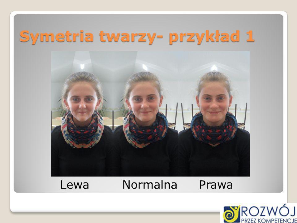 Symetria twarzy- przykład 1 Lewa Normalna Prawa