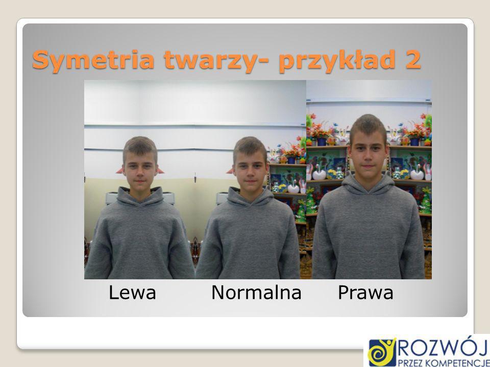 Symetria twarzy- przykład 2 Lewa Normalna Prawa