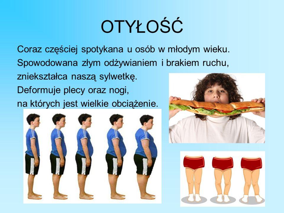 OTYŁOŚĆ Coraz częściej spotykana u osób w młodym wieku. Spowodowana złym odżywianiem i brakiem ruchu, zniekształca naszą sylwetkę. Deformuje plecy ora
