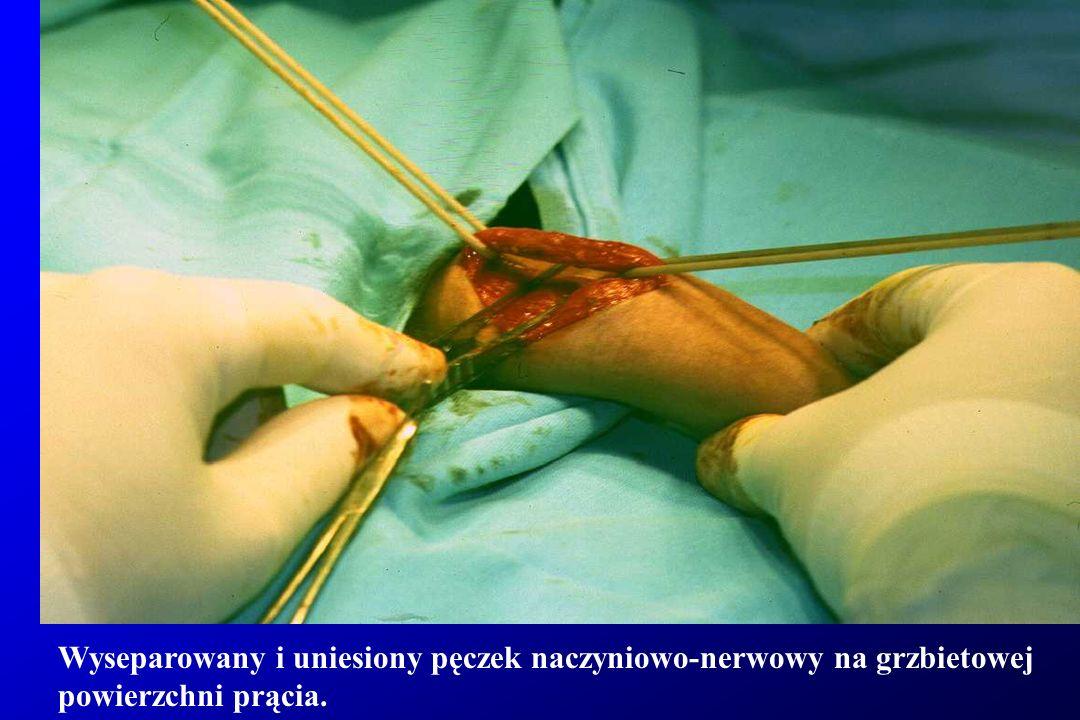 Wyseparowany i uniesiony pęczek naczyniowo-nerwowy na grzbietowej powierzchni prącia.