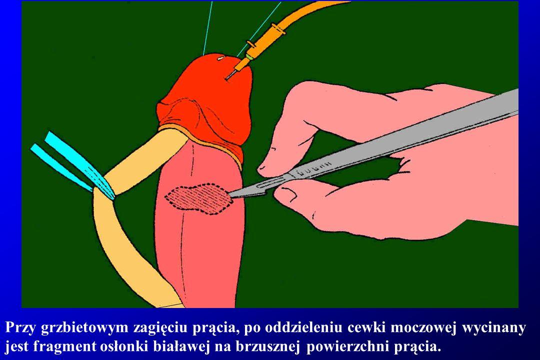 Przy grzbietowym zagięciu prącia, po oddzieleniu cewki moczowej wycinany jest fragment osłonki białawej na brzusznej powierzchni prącia.