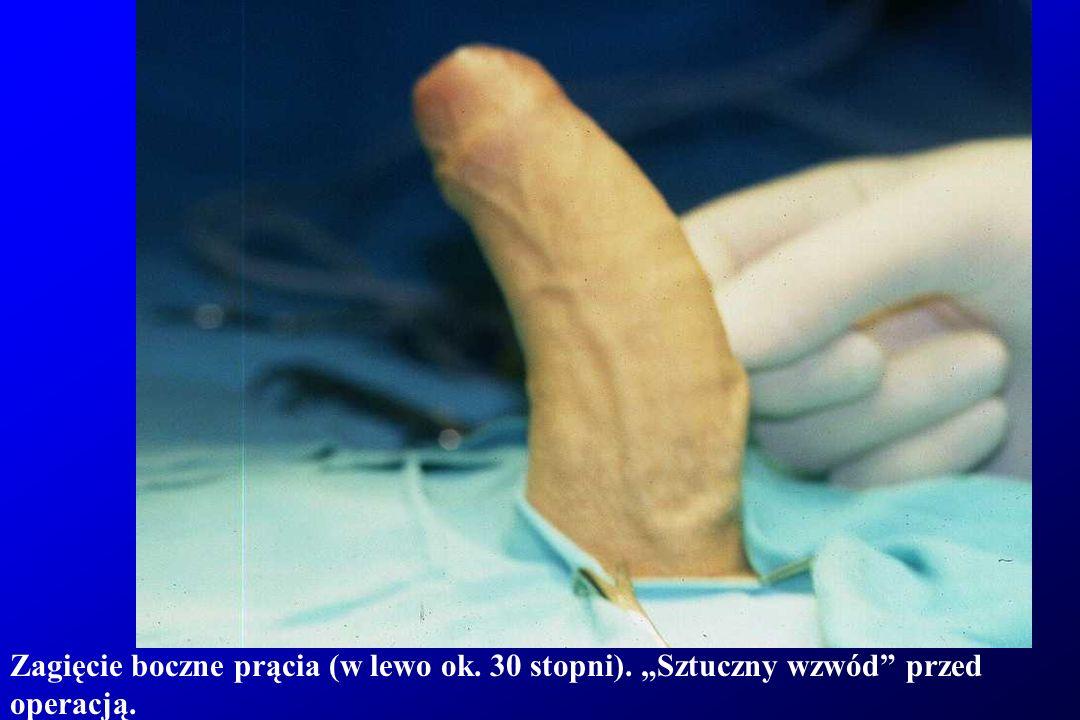 Zagięcie boczne prącia (w lewo ok. 30 stopni). Sztuczny wzwód przed operacją.
