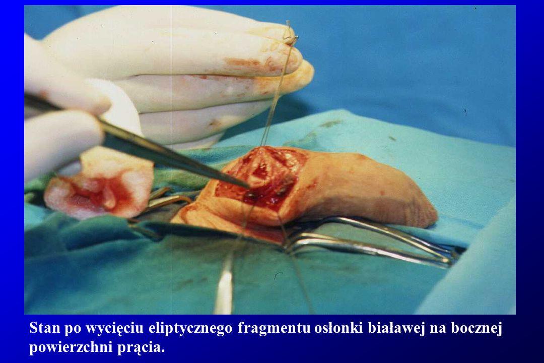 Stan po wycięciu eliptycznego fragmentu osłonki białawej na bocznej powierzchni prącia.