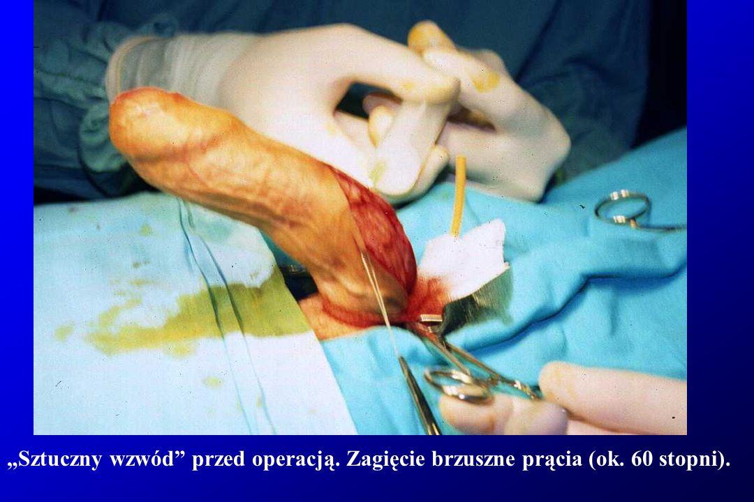 Sztuczny wzwód przed operacją. Zagięcie brzuszne prącia (ok. 60 stopni).
