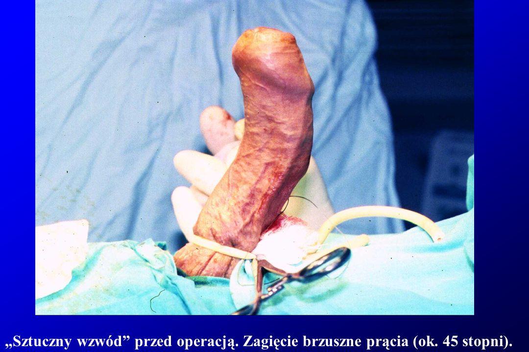Sztuczny wzwód przed operacją. Zagięcie brzuszne prącia (ok. 45 stopni).