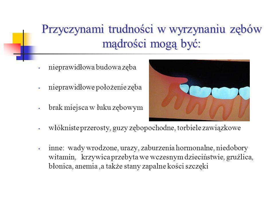 Przyczynami trudności w wyrzynaniu zębów mądrości mogą być: nieprawidłowa budowa zęba nieprawidłowe położenie zęba brak miejsca w łuku zębowym włókniste przerosty, guzy zębopochodne, torbiele zawiązkowe inne: wady wrodzone, urazy, zaburzenia hormonalne, niedobory witamin, krzywica przebyta we wczesnym dzieciństwie, gruźlica, błonica, anemia,a także stany zapalne kości szczęki
