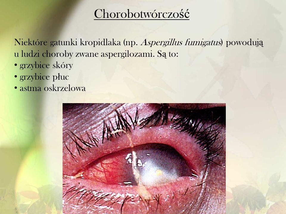 Chorobotwórczo ść Niektóre gatunki kropidlaka (np. Aspergillus fumigatus) powoduj ą u ludzi choroby zwane aspergilozami. S ą to: grzybice skóry grzybi