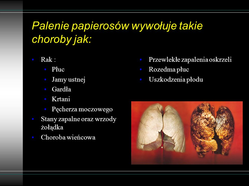 Palenie papierosów wywołuje takie choroby jak: Rak : Płuc Jamy ustnej Gardła Krtani Pęcherza moczowego Stany zapalne oraz wrzody żołądka Choroba wieńc