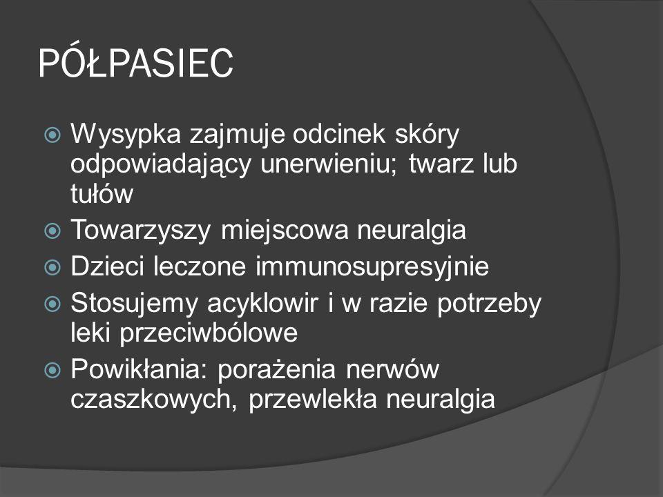 PÓŁPASIEC Wysypka zajmuje odcinek skóry odpowiadający unerwieniu; twarz lub tułów Towarzyszy miejscowa neuralgia Dzieci leczone immunosupresyjnie Stosujemy acyklowir i w razie potrzeby leki przeciwbólowe Powikłania: porażenia nerwów czaszkowych, przewlekła neuralgia