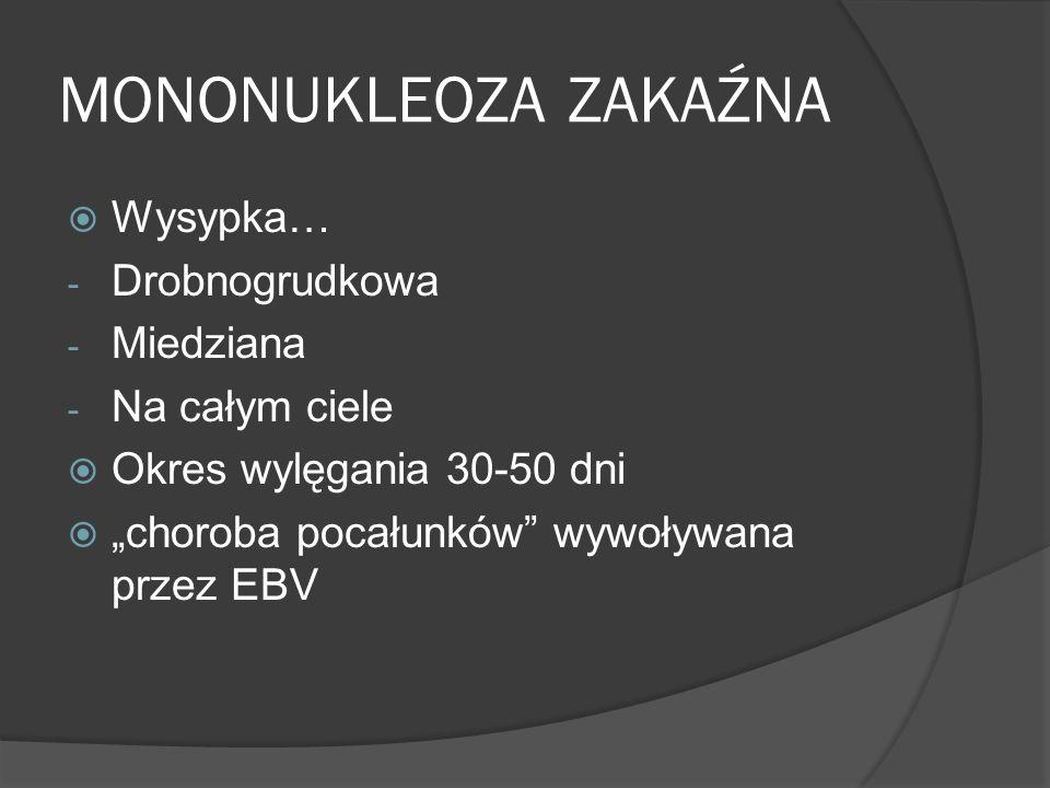 MONONUKLEOZA ZAKAŹNA Wysypka… - Drobnogrudkowa - Miedziana - Na całym ciele Okres wylęgania 30-50 dni choroba pocałunków wywoływana przez EBV
