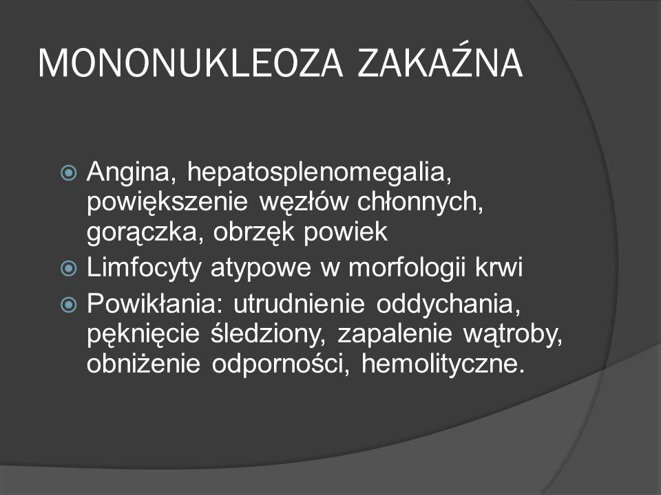 MONONUKLEOZA ZAKAŹNA Angina, hepatosplenomegalia, powiększenie węzłów chłonnych, gorączka, obrzęk powiek Limfocyty atypowe w morfologii krwi Powikłania: utrudnienie oddychania, pęknięcie śledziony, zapalenie wątroby, obniżenie odporności, hemolityczne.
