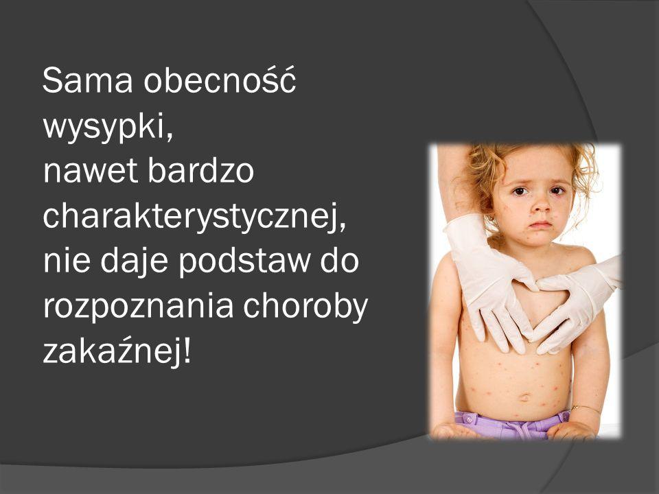 Sama obecność wysypki, nawet bardzo charakterystycznej, nie daje podstaw do rozpoznania choroby zakaźnej!