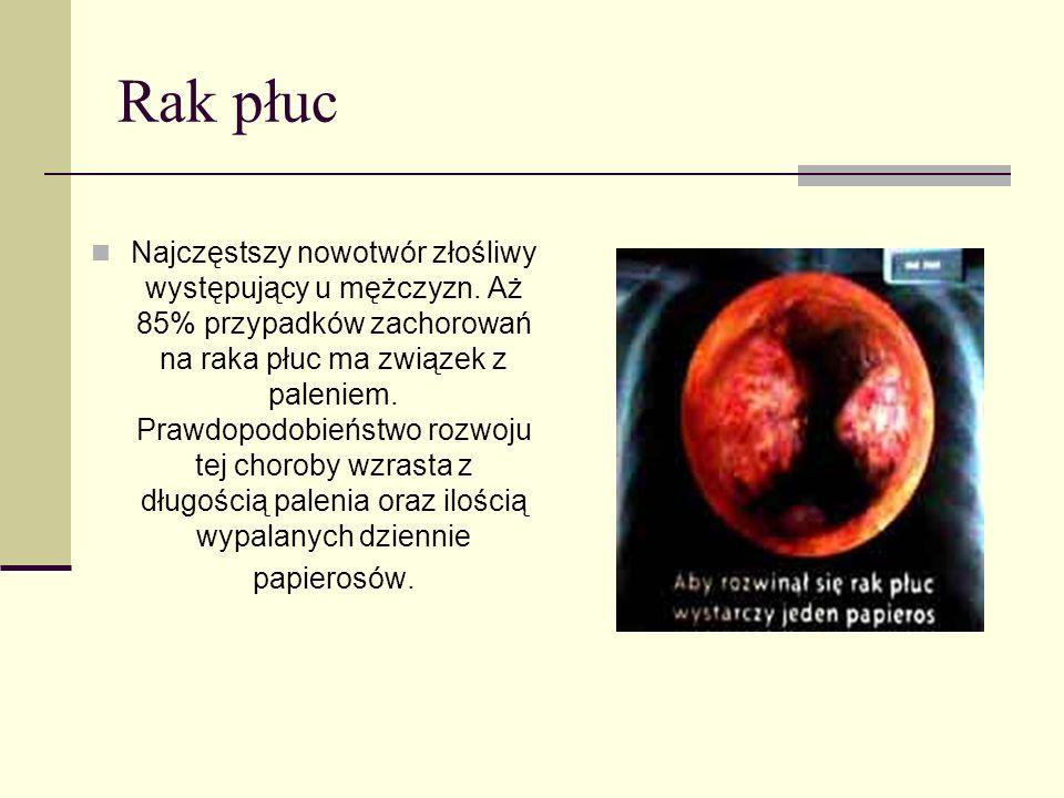 Rak płuc Najczęstszy nowotwór złośliwy występujący u mężczyzn. Aż 85% przypadków zachorowań na raka płuc ma związek z paleniem. Prawdopodobieństwo roz