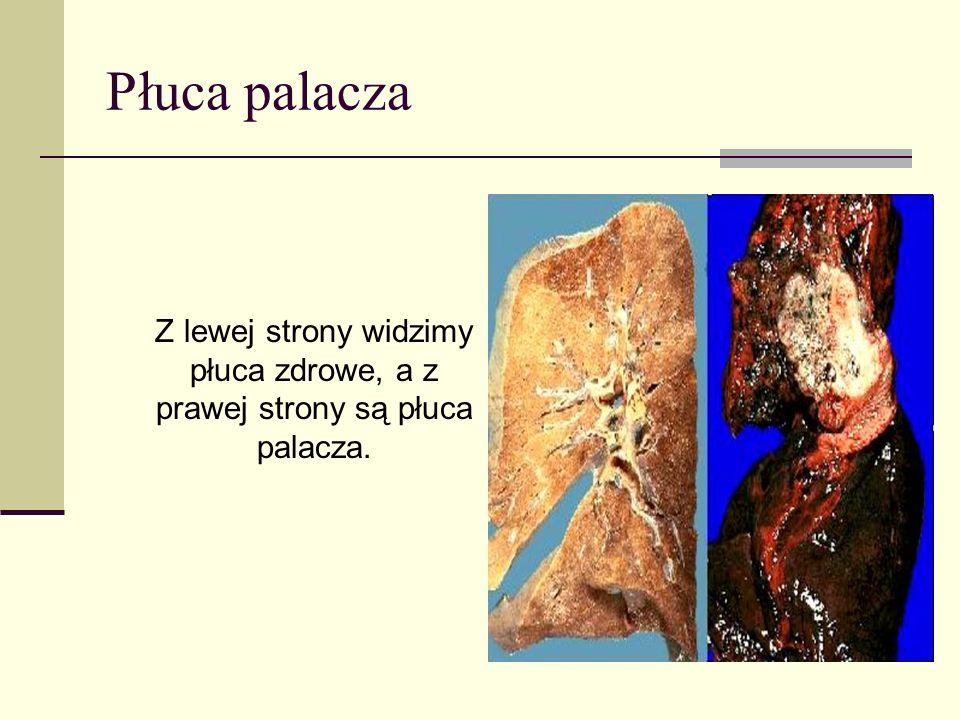 Aorta palacza AORTA 32 - LETNIEGO PALACZA Dym tytoniowy sprawia, że na ściankach Twojej aorty odkładają się złogi tłuszczu.