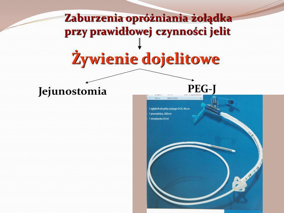 Zaburzenia opróżniania żołądka przy prawidłowej czynności jelit Żywienie dojelitowe Jejunostomia PEG-J