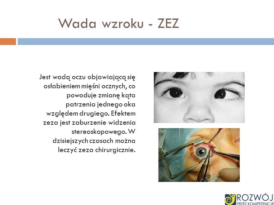 Wada wzroku - ZEZ Jest wadą oczu objawiającą się osłabieniem mięśni ocznych, co powoduje zmianę kąta patrzenia jednego oka względem drugiego. Efektem