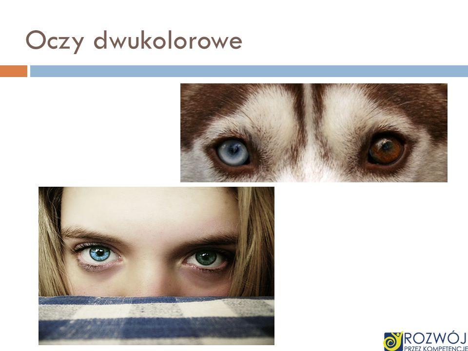 Oczy dwukolorowe