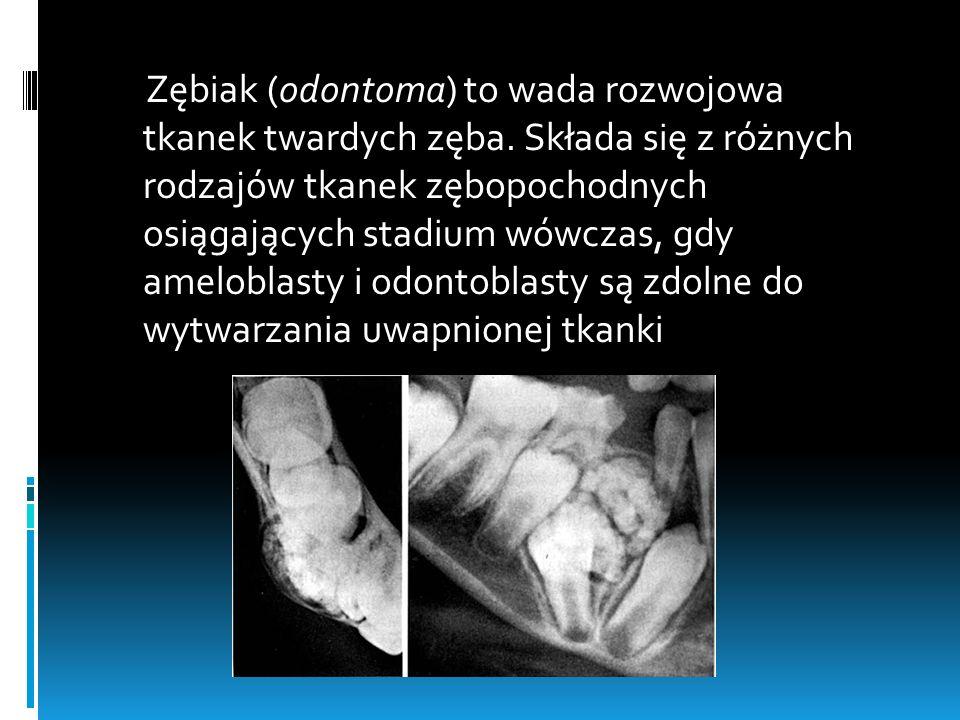 Zębiak (odontoma) to wada rozwojowa tkanek twardych zęba. Składa się z różnych rodzajów tkanek zębopochodnych osiągających stadium wówczas, gdy amelob