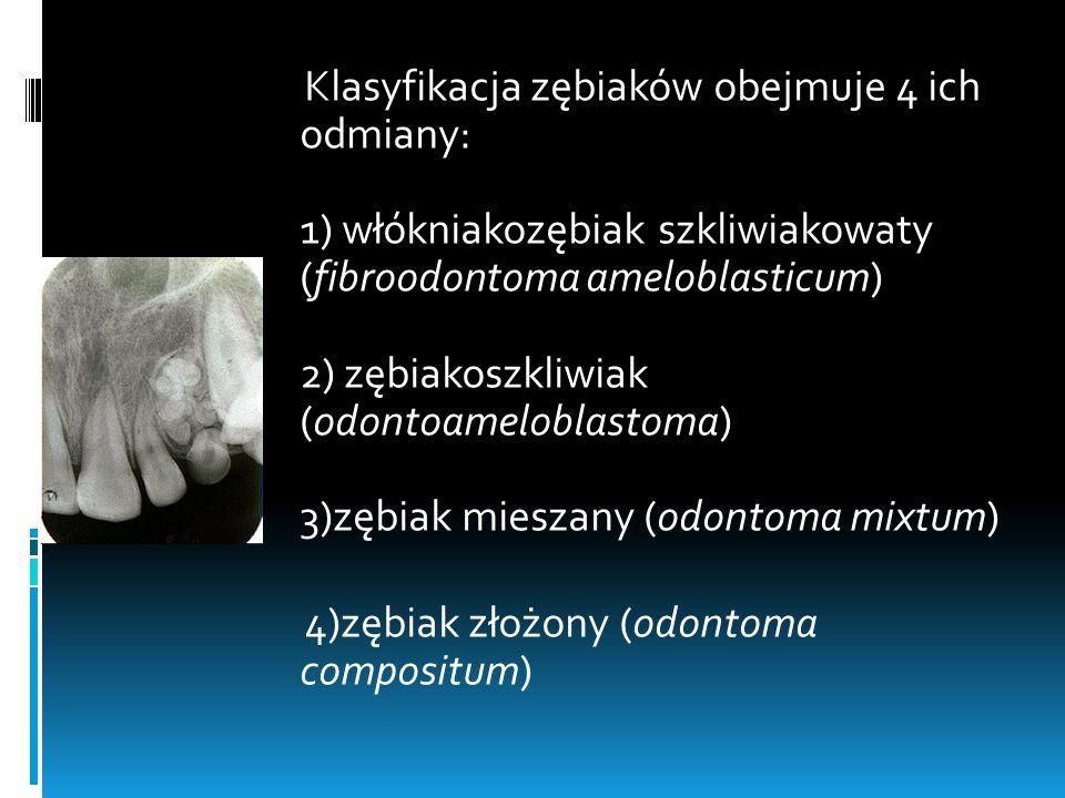 Klasyfikacja zębiaków obejmuje 4 ich odmiany: 1) włókniakozębiak szkliwiakowaty (fibroodontoma ameloblasticum) 2) zębiakoszkliwiak (odontoameloblastom