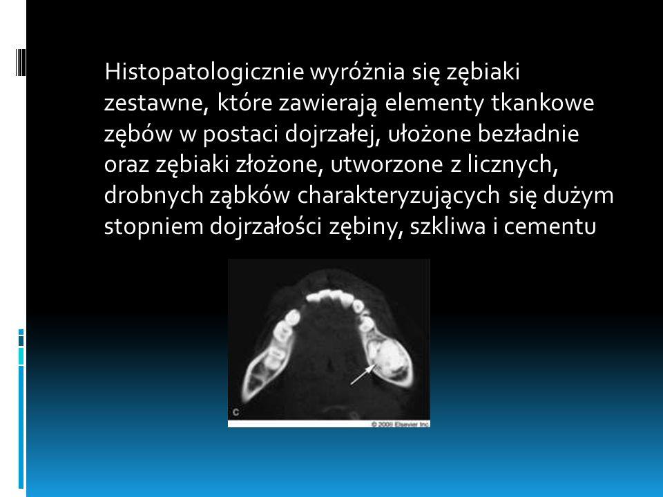 Histopatologicznie wyróżnia się zębiaki zestawne, które zawierają elementy tkankowe zębów w postaci dojrzałej, ułożone bezładnie oraz zębiaki złożone,
