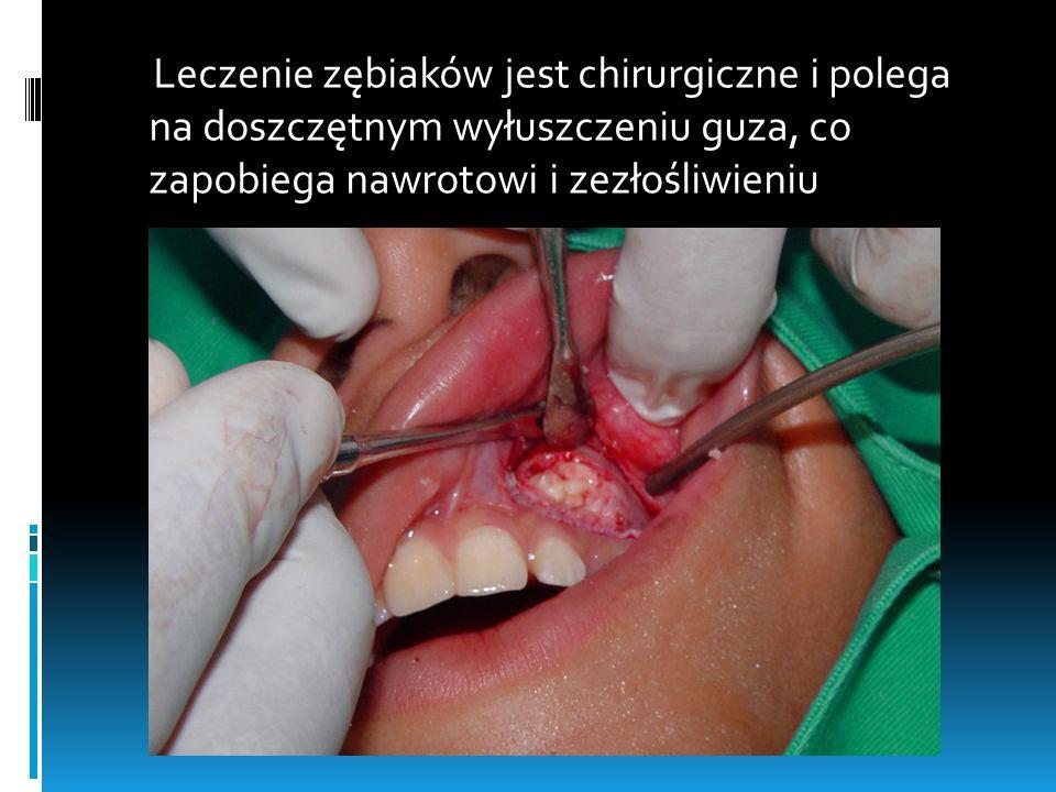 Leczenie zębiaków jest chirurgiczne i polega na doszczętnym wyłuszczeniu guza, co zapobiega nawrotowi i zezłośliwieniu