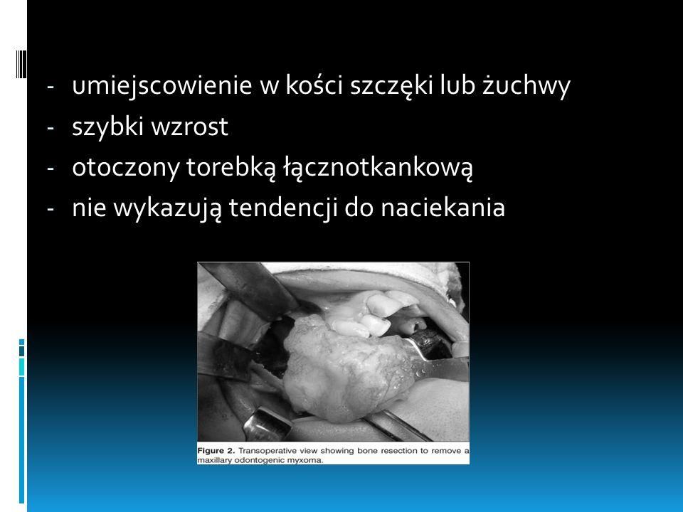 - umiejscowienie w kości szczęki lub żuchwy - szybki wzrost - otoczony torebką łącznotkankową - nie wykazują tendencji do naciekania