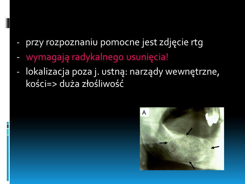 - przy rozpoznaniu pomocne jest zdjęcie rtg - wymagają radykalnego usunięcia! - lokalizacja poza j. ustną: narządy wewnętrzne, kości=> duża złośliwość