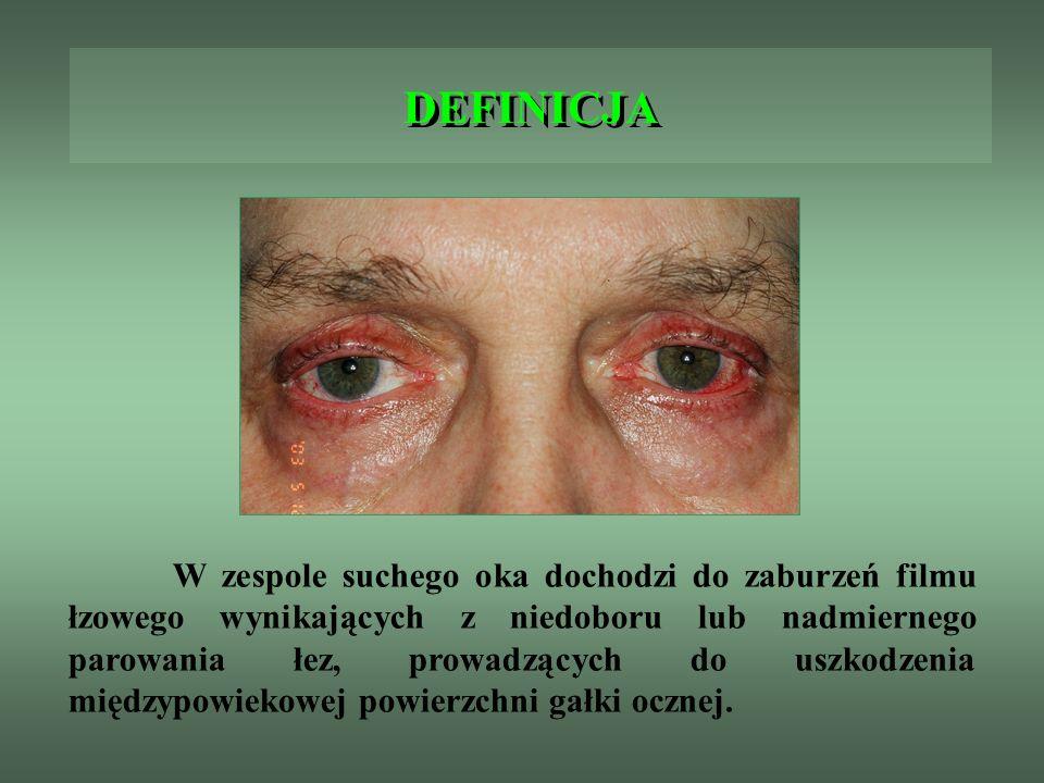 DEFINICJA W zespole suchego oka dochodzi do zaburzeń filmu łzowego wynikających z niedoboru lub nadmiernego parowania łez, prowadzących do uszkodzenia