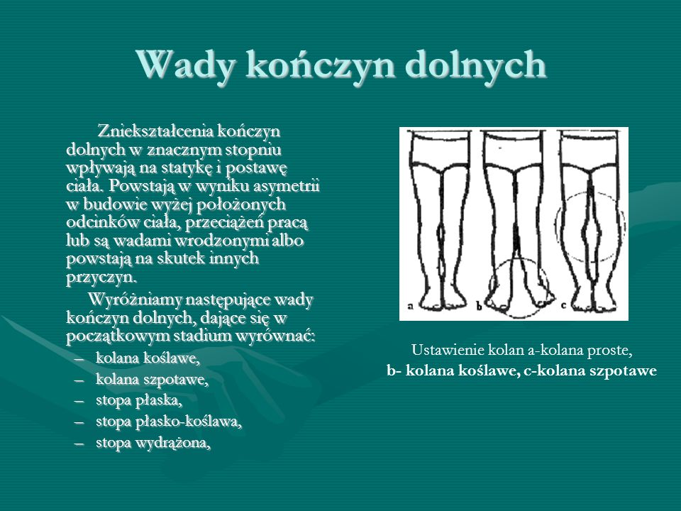 Wady kończyn dolnych Zniekształcenia kończyn dolnych w znacznym stopniu wpływają na statykę i postawę ciała.