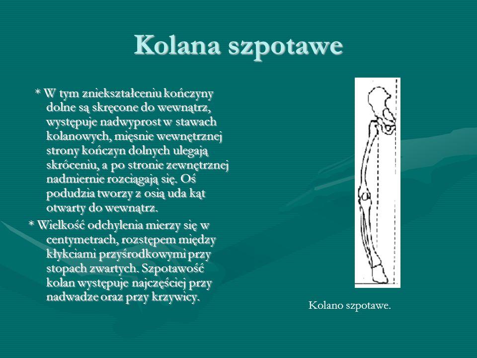 Kolana szpotawe * W tym zniekształceniu kończyny dolne są skręcone do wewnątrz, występuje nadwyprost w stawach kolanowych, mięsnie wewnętrznej strony kończyn dolnych ulegają skróceniu, a po stronie zewnętrznej nadmiernie rozciągają się.