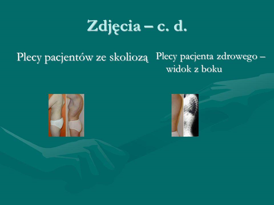 Zdjęcia – c. d. Plecy pacjentów ze skoliozą Plecy pacjenta zdrowego – widok z boku