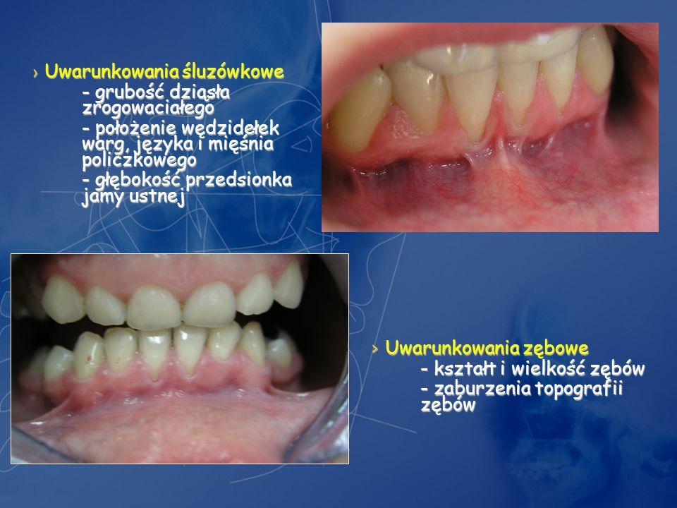 Uwarunkowania śluzówkowe Uwarunkowania śluzówkowe - grubość dziąsła zrogowaciałego - położenie wędzidełek warg, języka i mięśnia policzkowego - głębok