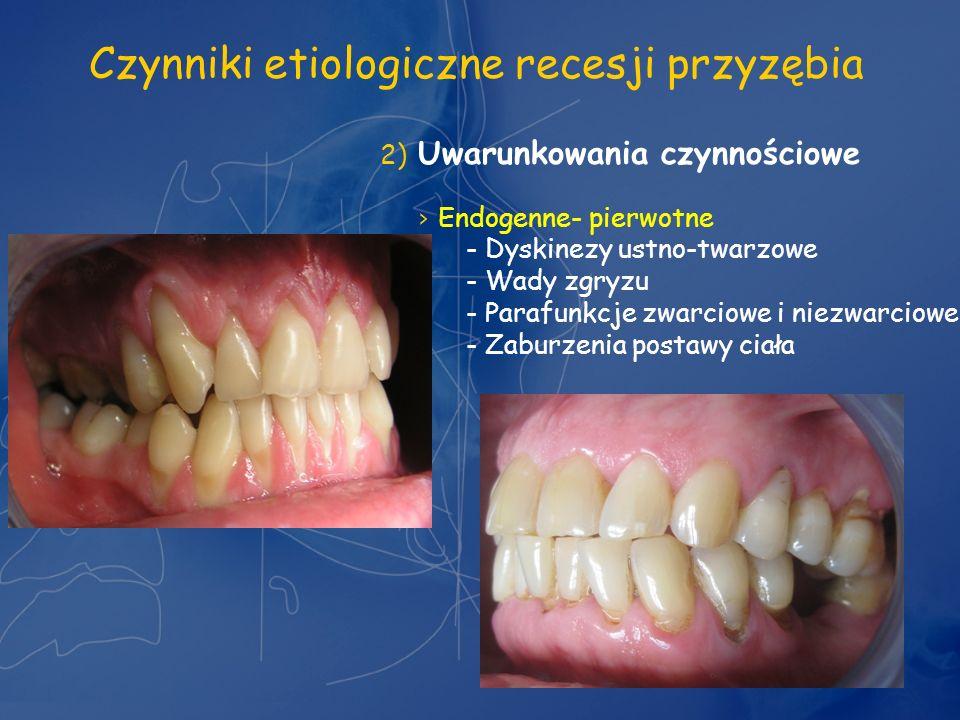 Czynniki etiologiczne recesji przyzębia 2) Uwarunkowania czynnościowe Endogenne- pierwotne - Dyskinezy ustno-twarzowe - Wady zgryzu - Parafunkcje zwar